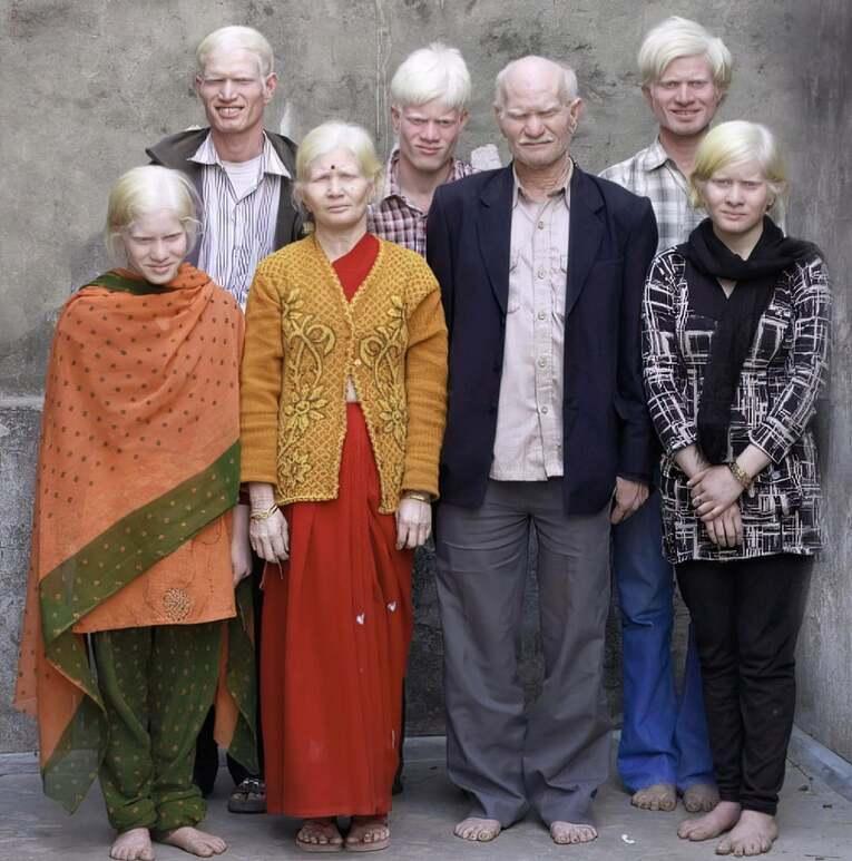 Albino Hintliler